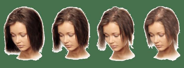 Влияние стресса на волосы